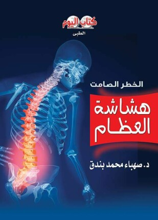 تحميل وقراءة كتاب هشاشة العظام الخطر الصامت تأليف صهباء بندق pdf مجانا